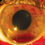 Glaucoma-Rubeosis - eye health - S.S. Gill