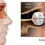 Glaucoma and Erectile Dysfunction
