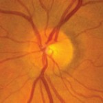 Glaucoma - Normal optic disc