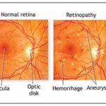 Retinopathy a sign of Cognitive Decline