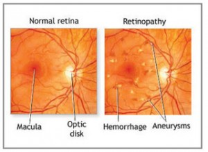 ipoh echo issue 142, Retinopathy, Dr Lee Mun Wai