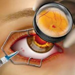 Eye Chat – Eye injections for the treatment of retinal diseases
